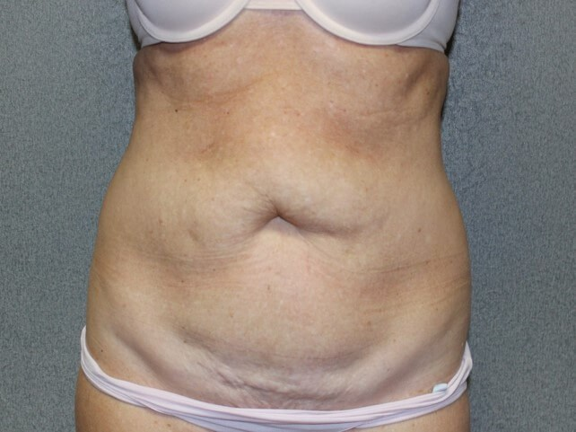 Liposuction Front Before