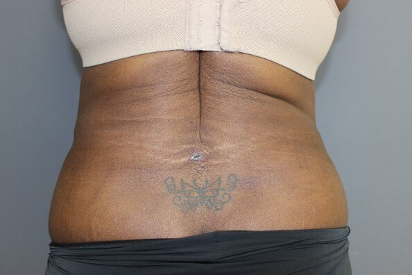 Tummy Tuck Back After
