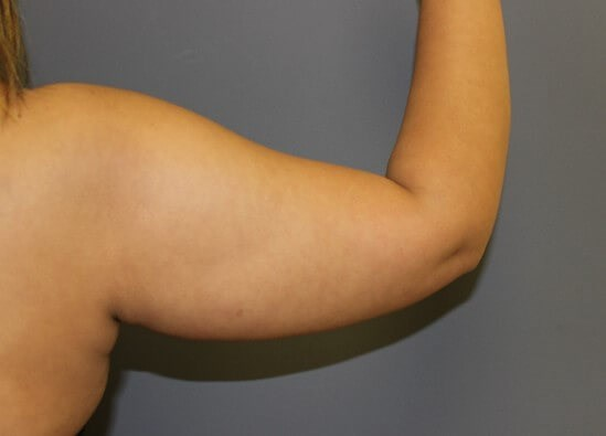 Liposuction Arms Before