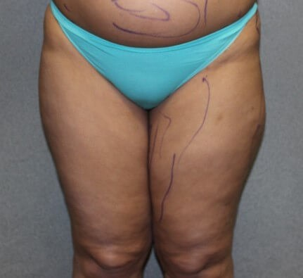 Liposuction Legs Before