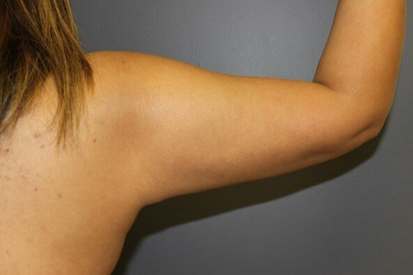 Liposuction Arms After