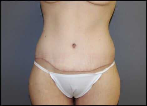 Tummy Tuck Front After