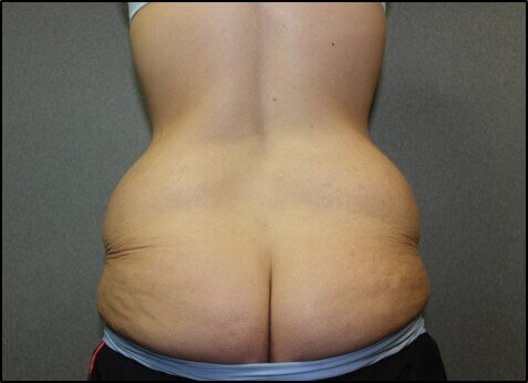 Tummy Tuck Back Before