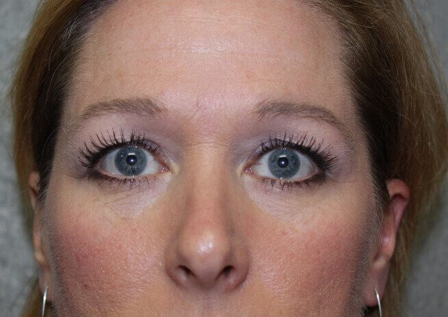 Brow Lift Front Before