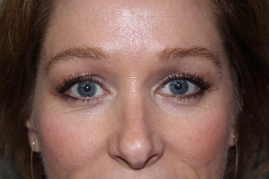 Brow Lift Front After
