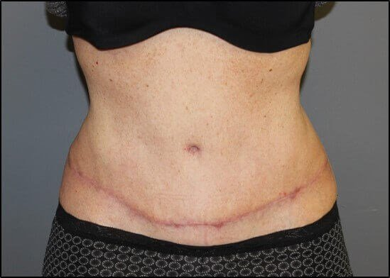 Abdominoplasty Front After