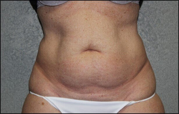 Abdominoplasty Front Before