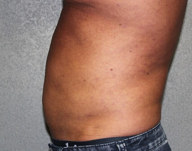 Liposuction Side Before