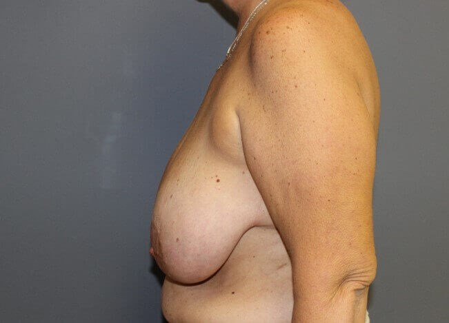 Breast Reduction Side Before