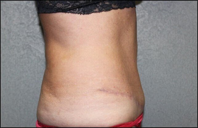 Abdominoplasty Side After