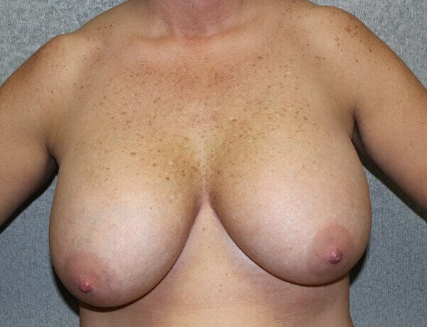 Breast Lift Front Before