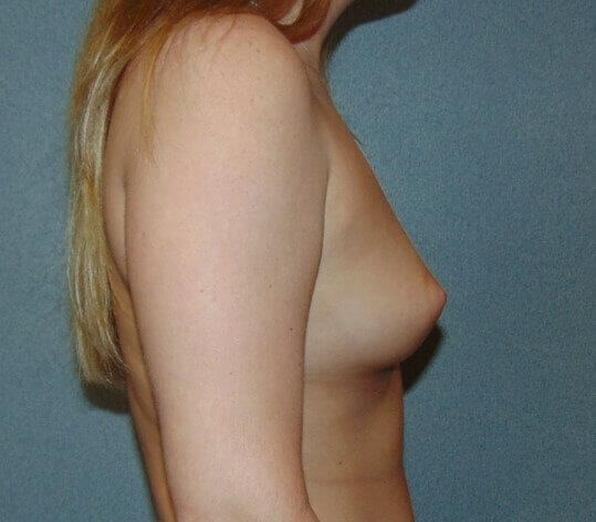 Breast Augmentation Side Before