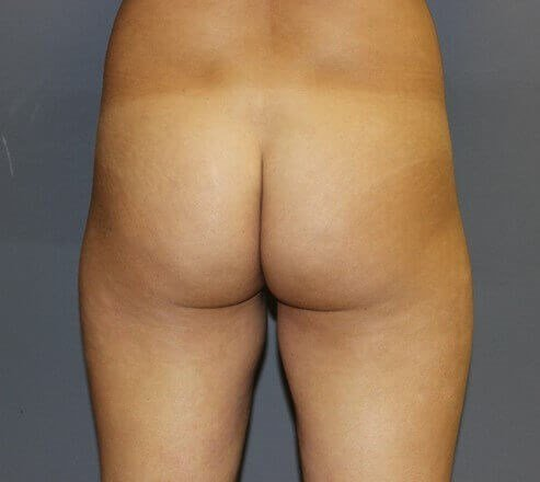 Butt Augmentation Back Before