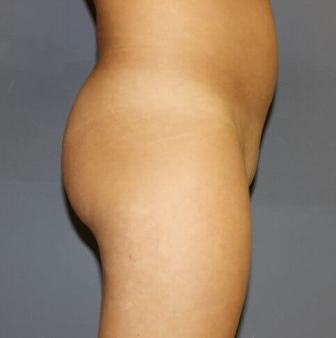 Butt Augmentation Side Before
