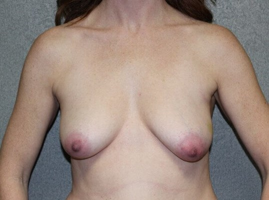 Breast Reconstruction Front Before