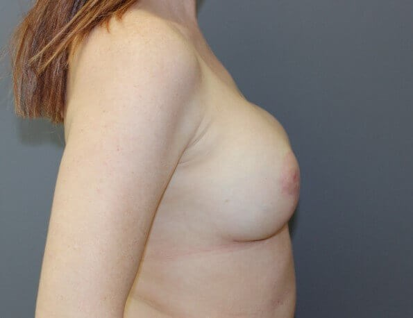 Nipple Reconstruction Side After