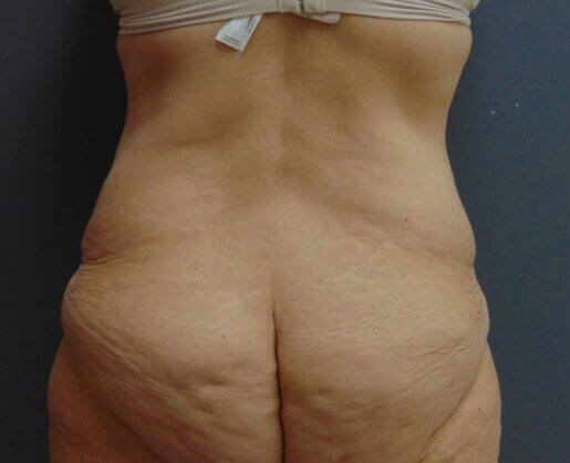 Liposuction Back Before