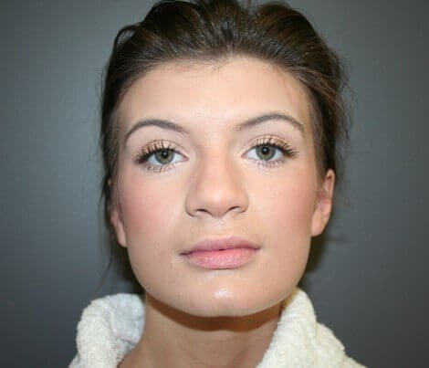 Rhinoplasty Front After