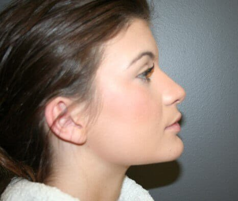 Rhinoplasty Side After