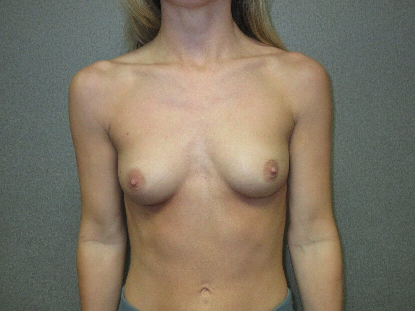 Bilateral Breast Augmentation Before front view