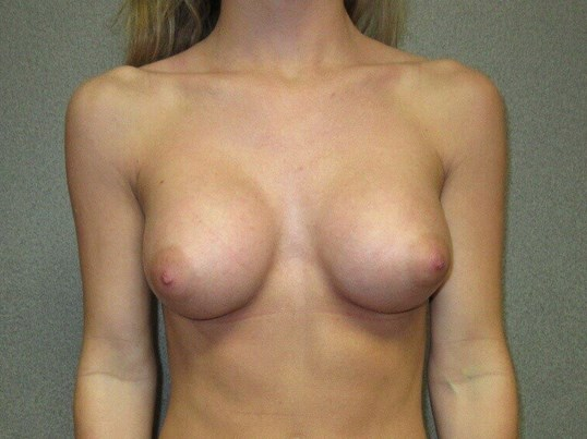 Bilateral Breast Augmentation After front view