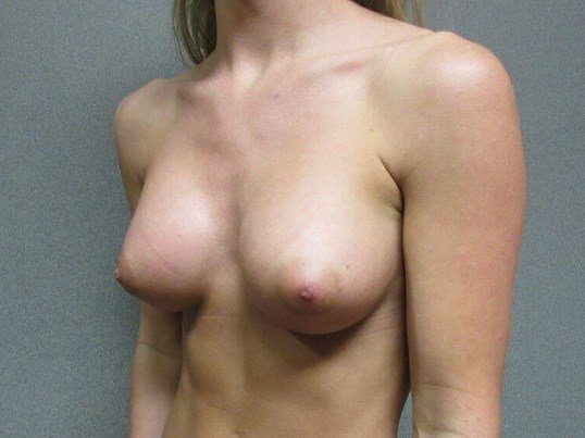 Bilateral Breast Augmentation After side view
