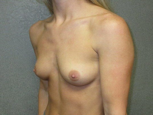 Bilateral Breast Augmentation Before side view