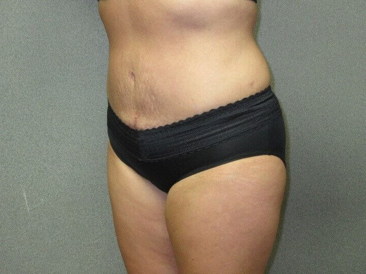 Tummy Tuck with Liposuction After oblique view