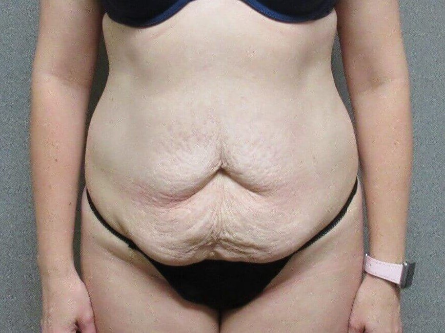 Tummy Tuck with Liposuction Before front view