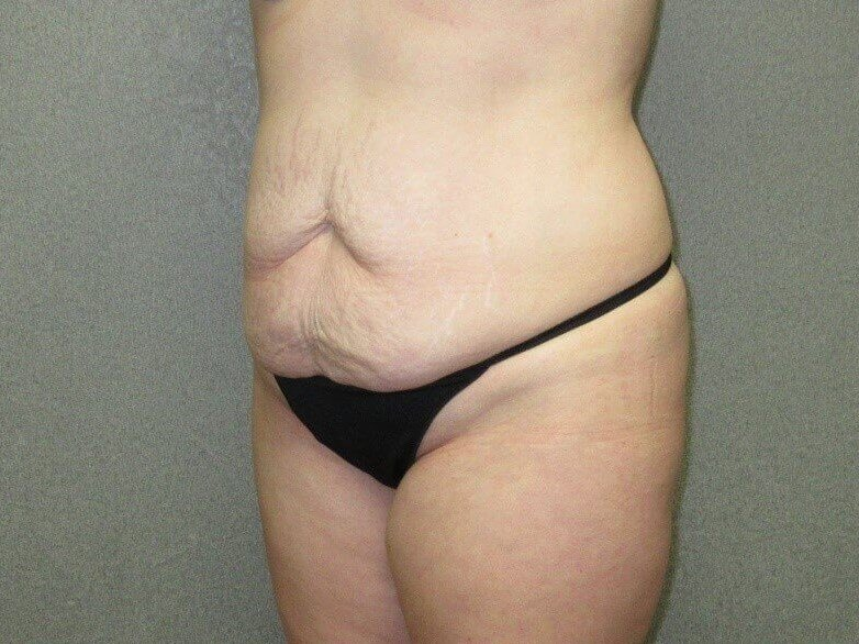 Tummy Tuck with Liposuction Before oblique view