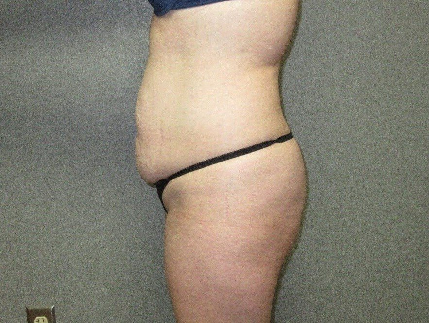 Tummy Tuck with Liposuction Before side view