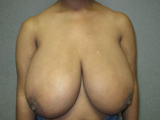 Bilateral Breast Reduction Before front view
