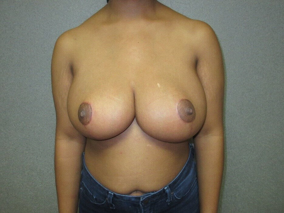 Bilateral Breast Reduction After front view