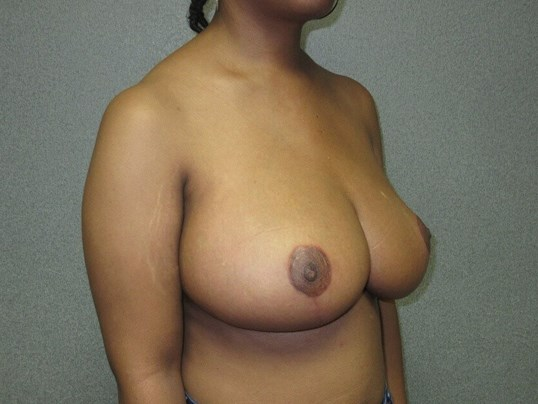Bilateral Breast Reduction After side view