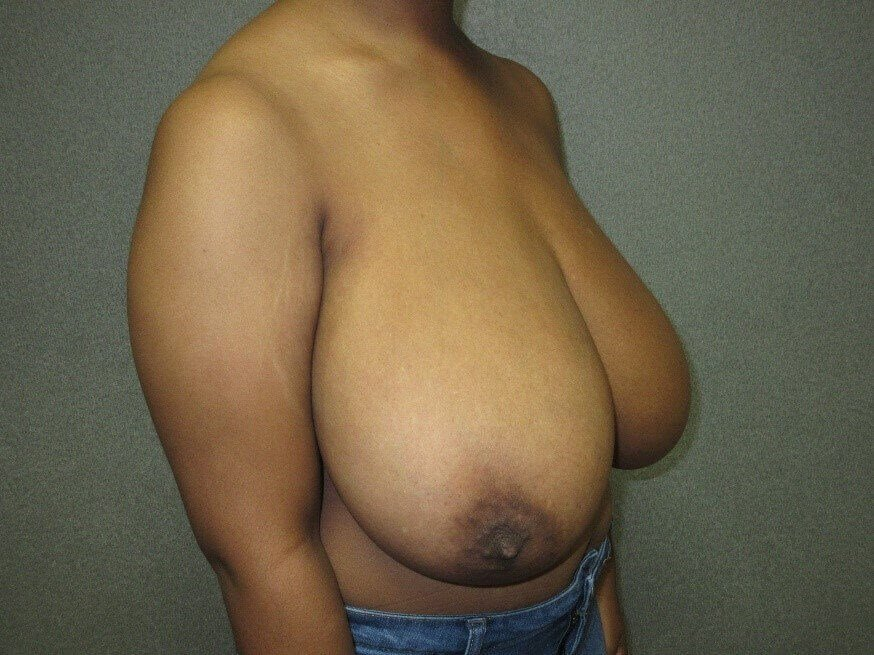 Bilateral Breast Reduction Before side view