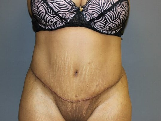 Abdominoplasty, Liposuction After front view