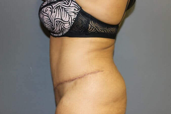 Abdominoplasty, Liposuction After side view