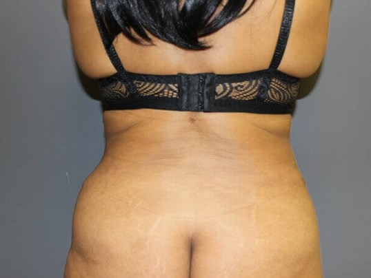 Abdominoplasty, Liposuction After rear view