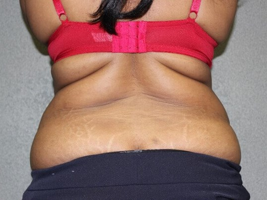 Abdominoplasty, Liposuction Before rear view