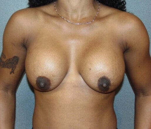 Bilateral Breast Revision Before front view