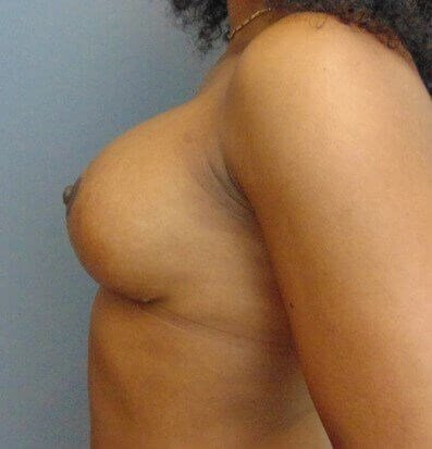 Bilateral Breast Revision After side view