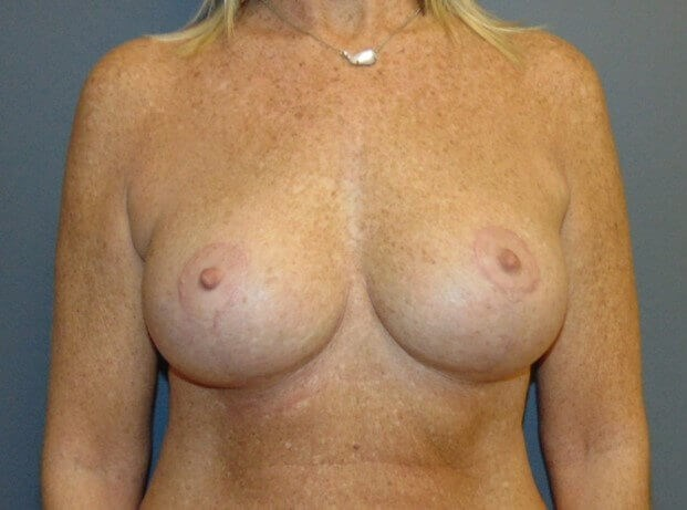 Mastopexy with Augmentation After front view