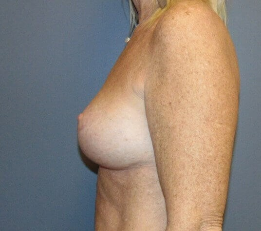 Mastopexy with Augmentation After side view