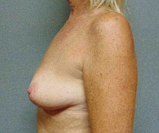 Mastopexy with Augmentation Before side view