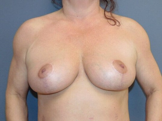 Bilateral Mastopexy After front view