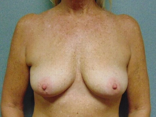 Mastopexy with Augmentation Before front view