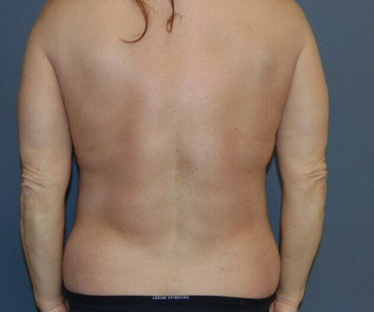 Liposuction, Abdominoplasty After posterior view
