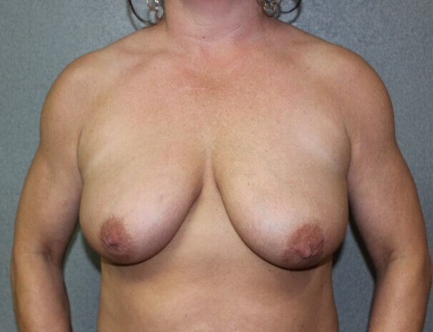 Bilateral Mastopexy Before front view