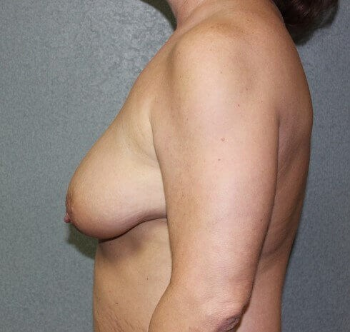 Bilateral Mastopexy Before side view