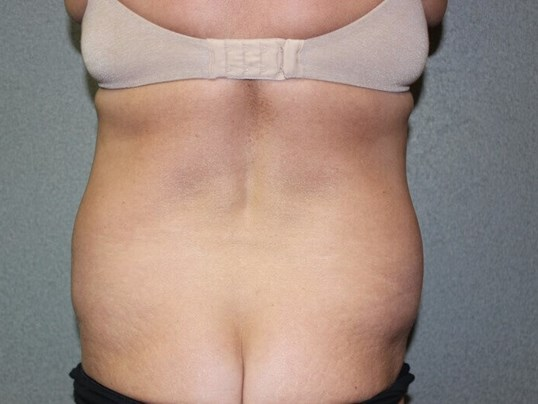 Liposuction, Abdominoplasty Before posterior view
